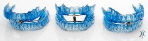 dentista en madrid, el ronquido y la apnea del sueño