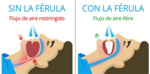 ferula para ronquido y apnea dentista en madrid