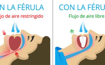 El Ronquido y su relación con la apnea del sueno