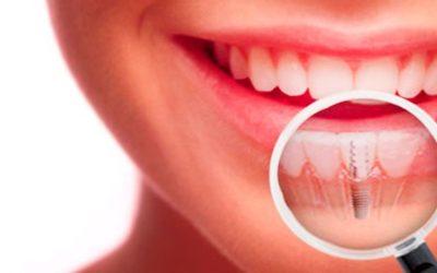 Implantes dentales, ¿que debemos saber antes de elegir donde colocarnoslos?